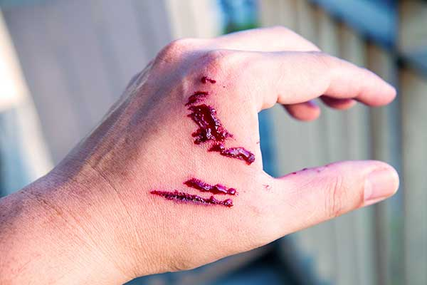 Dog Bite Incident Lawyer Lincoln, CA